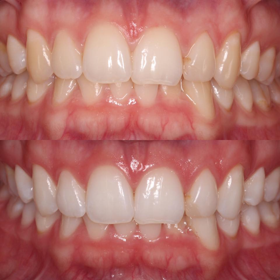 before and after daytime whitening - Wadebridge Dental Care