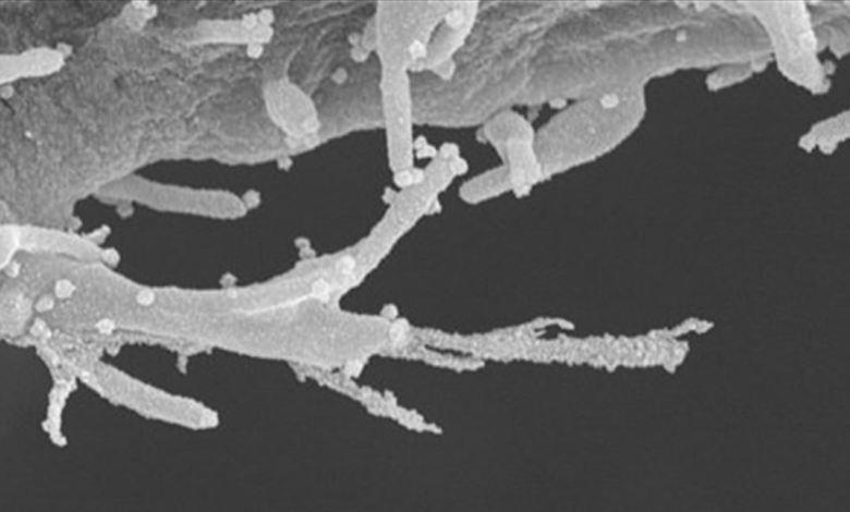 Photo of هكذا تنتشر مخالب كورونا داخل الجسم.. ,7 عقاقير سرطانية واعدة