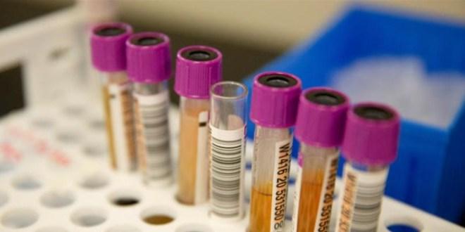 دراسة مفاجئة.. بلازما دم المتعافين لا تساعد مرضى كورونا