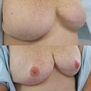 Boca Raton Areola Repigmentation and Reconstruction