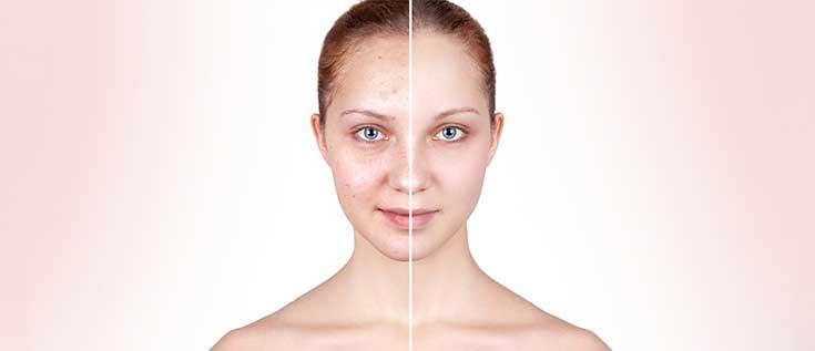 cara merawat wajah berjerawat agar tidak tumbuh lagi