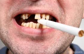 Is Smoking Weed Bad For Your Teeth?