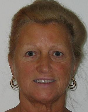 Middle aged lady before permanent makeup