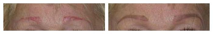 Corrective Eyebrows