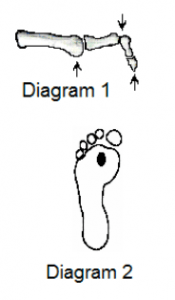 What are claw toes/ hammer toes /mallet toes /retracted toes?