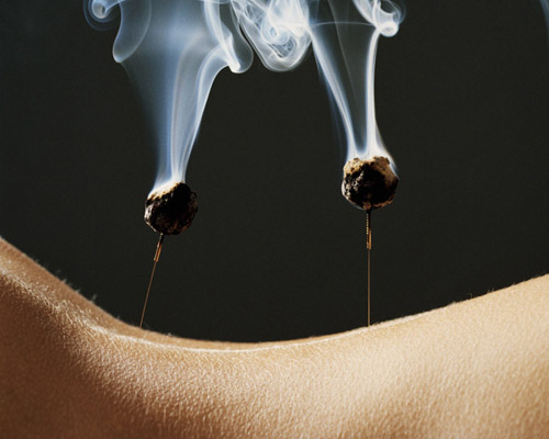 Moxibustion - Wall Street Pain Relief