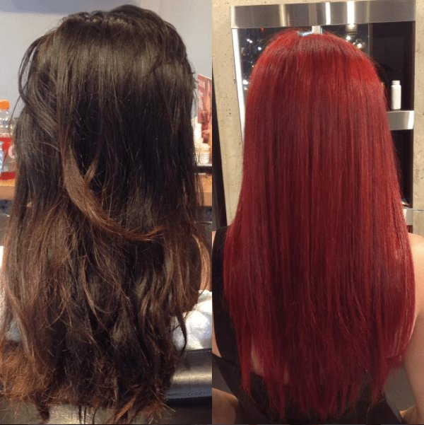 New Color Corrections Toronto Tony Shamas Hair Laser Ideas With Pictures