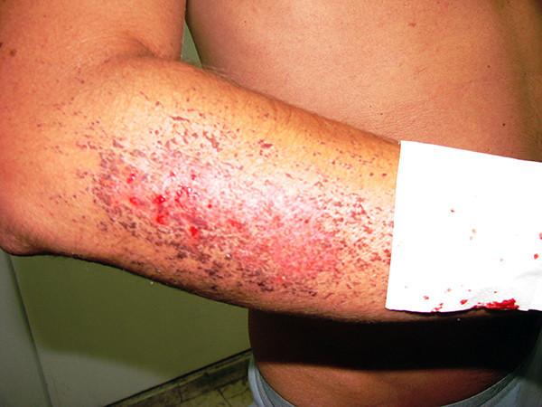 Volcano Boarding injury in Nicaragua