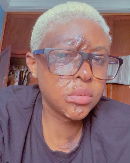 Lady narrates how an envious neighbour paid individuals to pour acid on her