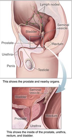Prostate Cancer Diagram