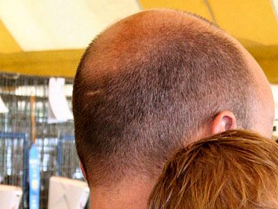 Was Hilft Gegen Haarausfall? – TOP Strategien Gegen Haarverlust