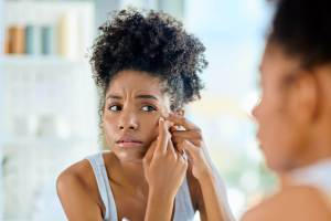 Acne Brings Emotional Charges In Women