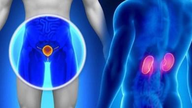 Photo of د پروستات كنسر(سرطان) Prostate Cancer