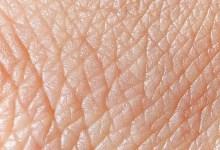 Photo of پوټکی یا پوست (Derma)