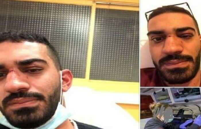 اعتداء على شاب أردني محمد أبو عيد