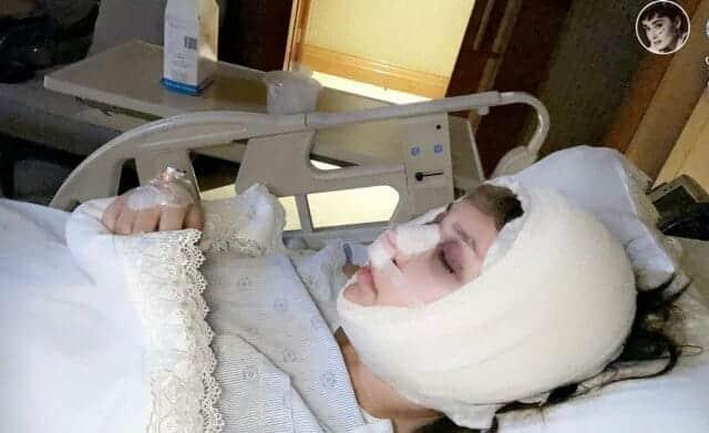 الدكتورة خلود تجري عملية جراحية في أنفها
