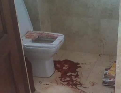 تعذيب خادمة في دبي حتى الموت - تعبيرية- دبي الإمارات جريمة