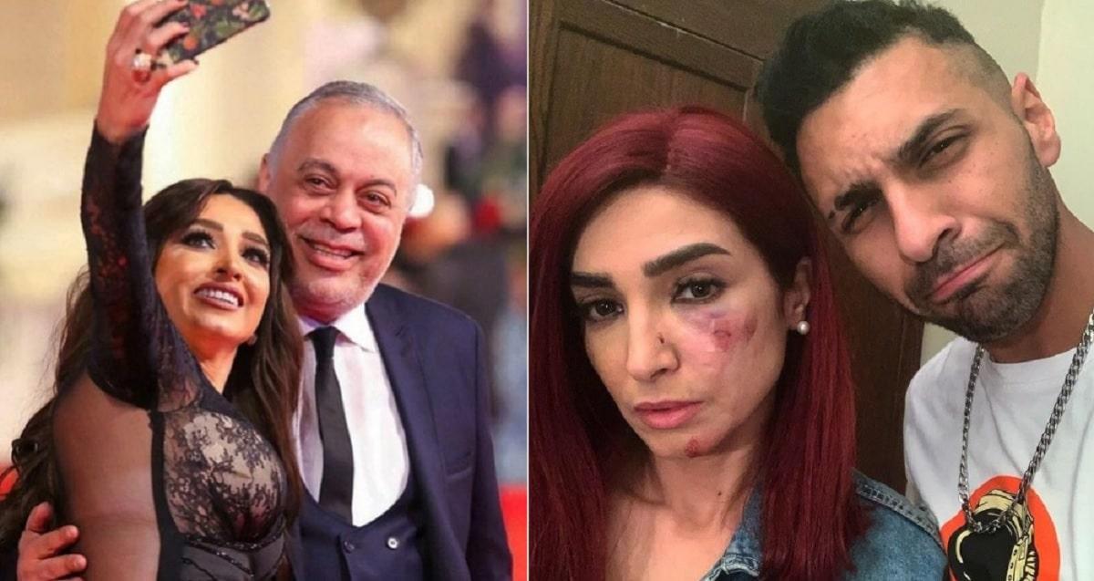 روجينا بوجه منتفخ و7 غرز لتجميل التشوّه .. شاهد ماذا حدث لزوجة أشرف زكي!