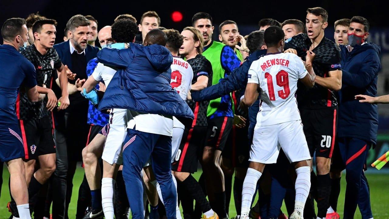 """""""شاهد"""" تورط في مشاجرة عنيفة إصابة نجم ليفربول بكسر في الأنف ونال البطاقة الحمراء"""