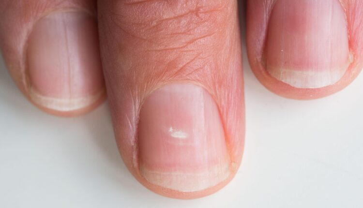 أسباب ظهور بقع بيضاء على الأظافر