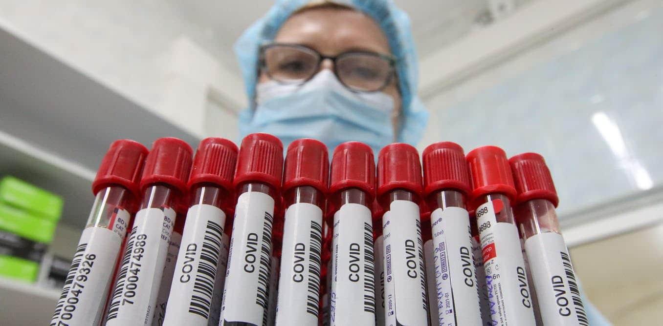 """الغارديان: وفاة امرأة أصيبت بمتغيرات """"ألفا وبيتا"""" لفيروس كورونا معاً .. ماذا قال علماء عن هذه الحالة!"""