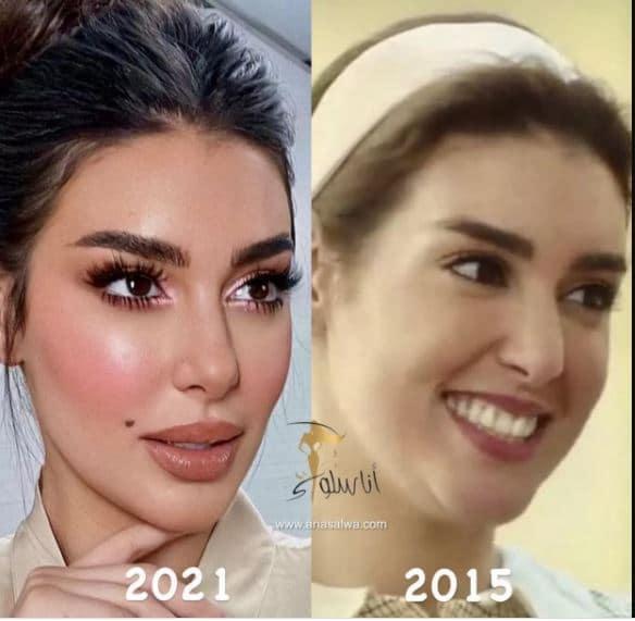 ياسمين صبري قبل وبعد