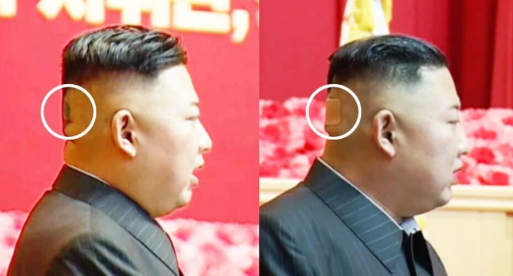زعيم كوريا الشمالية كيم جونغ أون وندبة على مؤخرة رأسه