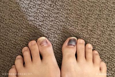 痛々しい両親指の爪…