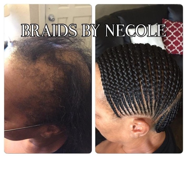 14 Extraordinary Alopecia Camouflage Cornrows By Braids By Necole pertaining to Fade Hairstyles For Black Women With Alopecia