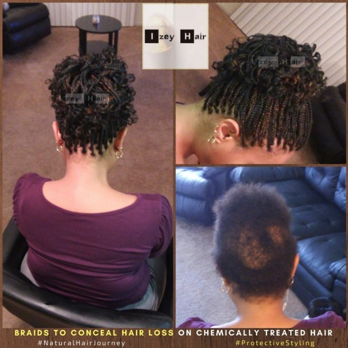 Sudden Hair Loss And Alopecia: One Braid & Protective Styling Option regarding Hairstyles For Black Women With Alopecia