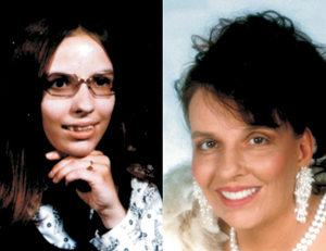 """""""Before and After"""" Cosmetic Reconstruction of Smile."""