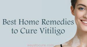 Best Home Remedies To Cure Vitiligo