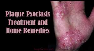 Plaque Psoriasis Treatment and Home Remedies