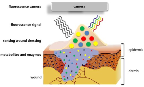 small resolution of figure 1 the design and function of the smart wound dressing the biosensors in the dressing can detect key parameters for wound healing like neutrophil