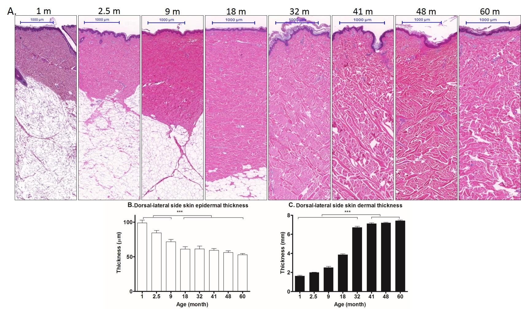 Frontiers | Dermal thickening with enhanced collagen ...