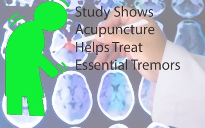 Treating Essential Tremors With Acupuncture