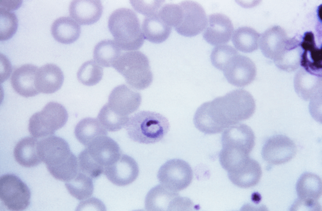 Blood Film