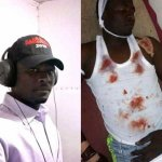 Peoples Democratic Party (PDP) Musician Stabbed After Releasing Song About Election Postponement (Photo)