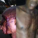 Head of Vigilante in Rumuchiolu, Eneka, Rivers state, Was beaten Up by Unknown Men And left Bleeding Badly. (Photos)
