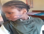 Lady allegedly burns her stepdaughter's face with hot knife in Abuja (Photos)