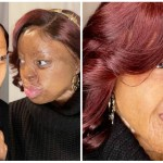 Kechi Okwuchi excited as she Wears Earrings Again after Losing her Earlobes in the Sosoliso aircrash 15 Years Ago