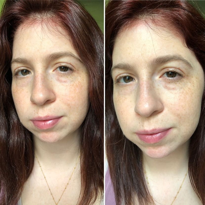 Before (left) and after (right) application of the Neutrogena Hydro Boost Hydrating Tint in Classic Ivory