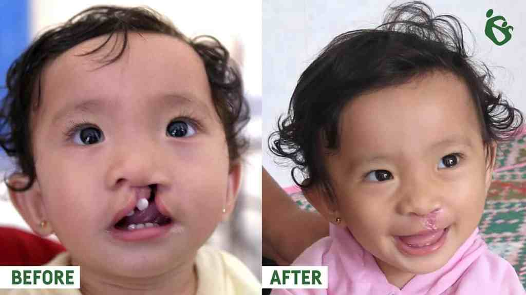 Before and after cleft palate Sumatra