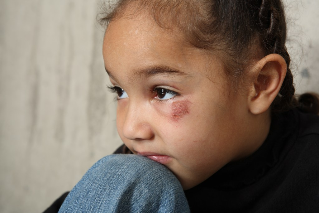 Adopt Arizona foster children, they deserve safe, loving homes.
