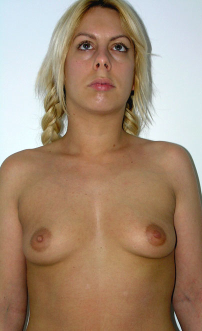 front view before breast augmentation - enlargement