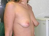 Scarless Breast Uplift