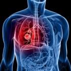 Tratamiento del cancer de pulmón
