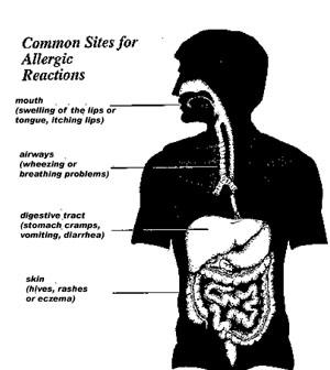 Mekanisme Alergi Oleh Makanan