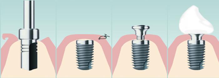 Implantology Tandartspraktijk Amsterdam noord
