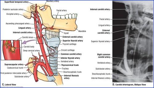 small resolution of vascular diagram of neck